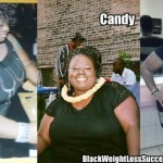 Candy lost 70 pounds with weight loss surgery