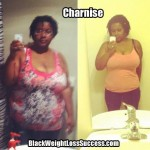 Charnise lost 100 pounds with weight loss surgery